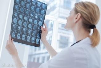 71% dintre persoanele care sufera un accident vascular au capacitatea de lucru afectata