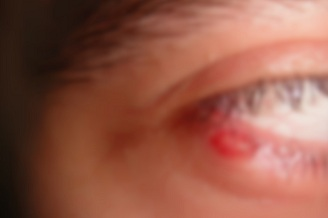 Afectiuni oculare: masuri de preventie pentru infectii ale pleopelor, precum orjeletul si salazionul
