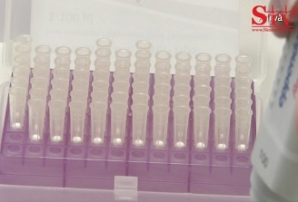 Care sunt testele folosite in diagnosticarea chisturilor ovariene