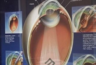 CDC: Jumatate dintre persoanele cu glaucom nu stiu ca sufera de aceasta afectiune