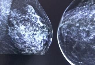 Mastectomie și reconstrucție mamară bilaterală la SCJU Târgu Mureș