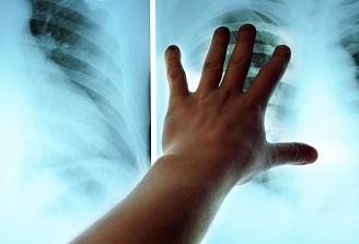 Medicii pneumologi marcheaza astazi, Ziua Pneumologiei Romanesti