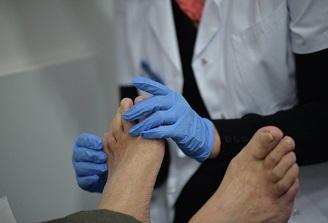 Persoanele care sufera de depresie si diabet zaharat, mai expuse riscului de picior diabetic