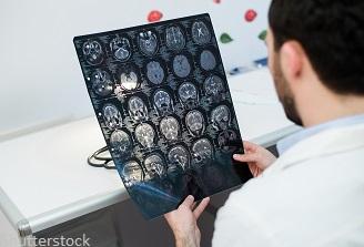 Studiu: Coronavirusul, capabil să se multiplice în interiorul creierului