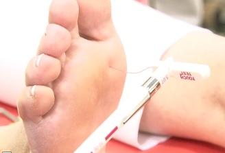 Testari gratuite pentru screeningul de neuropatie diabetica, la Craiova