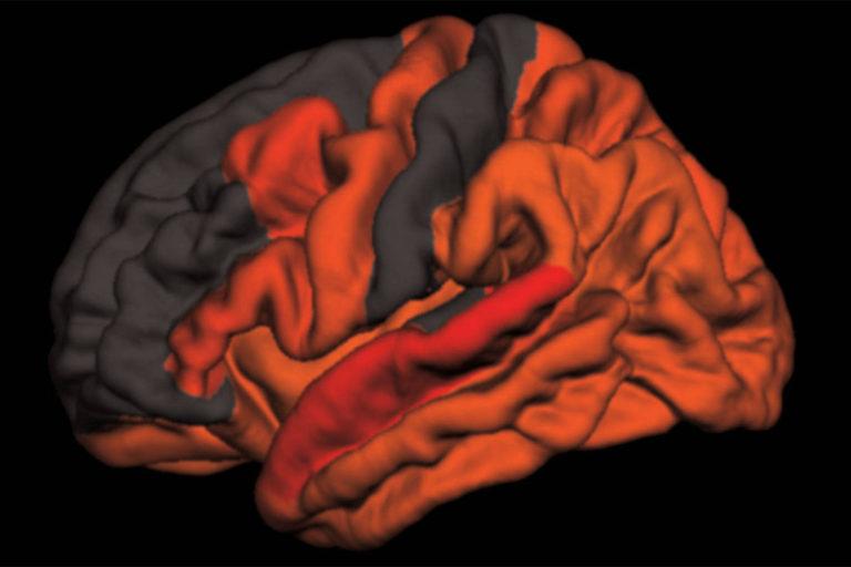 Aducanumab, medicamentul care încetinește evoluția Alzheimer, ar putea fi disponibil în șase luni