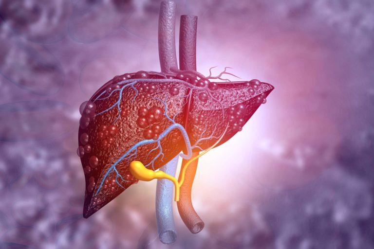 Numărul pacienților diagnosticați cu hepatite și intrați pe tratament  a scăzut considerabil, avertizează APAH-RO