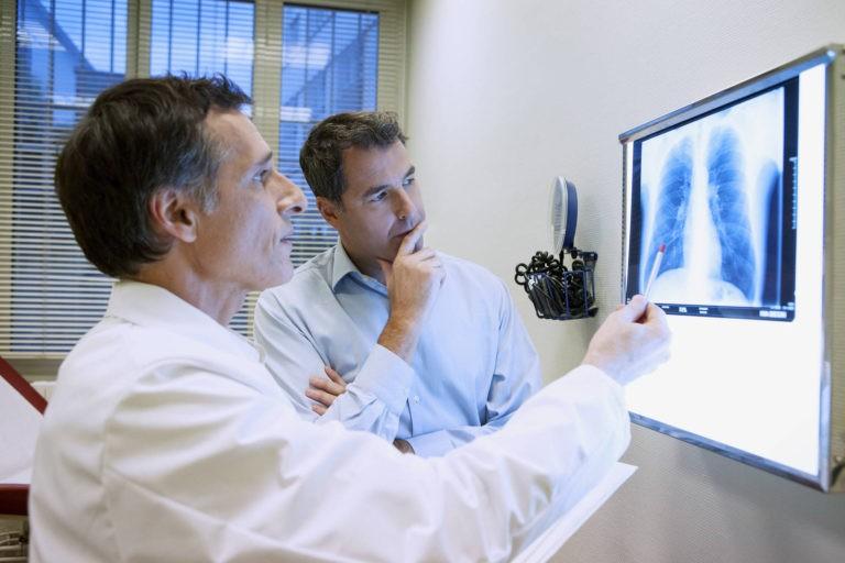 Persoanele care renunta la fumat au mai multe sanse sa nu se Imbolnaveasca de cancer pulmonar – studiu