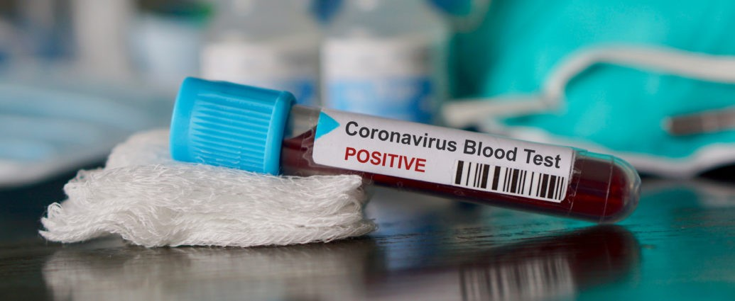 Ministerul Sănătății confirmă că Unifarm a încheiat un contrat cu Coreea de Sud pentru teste PCR 1