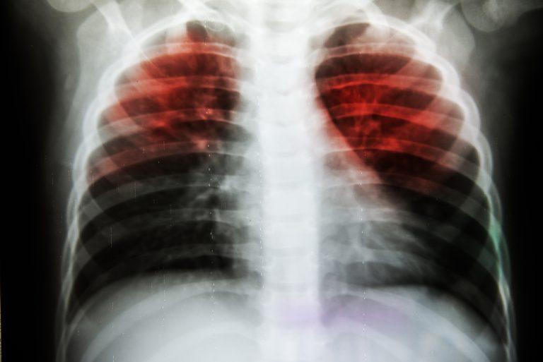Actualizări OMS ale regimului de tratament pentru persoanele cu TBC