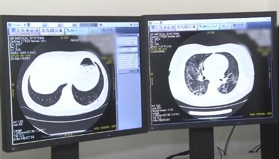 VIDEO Tehnică de reducere cu 70% a radiațiilor la care sunt expuși pacienţii COVID-19 în timpul examinării