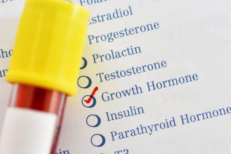 Acromegalia, o afecțiune endocrină rară