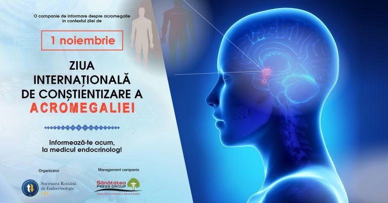 Astăzi se marchează Ziua Internațională de Conștientizare a Acromegaliei