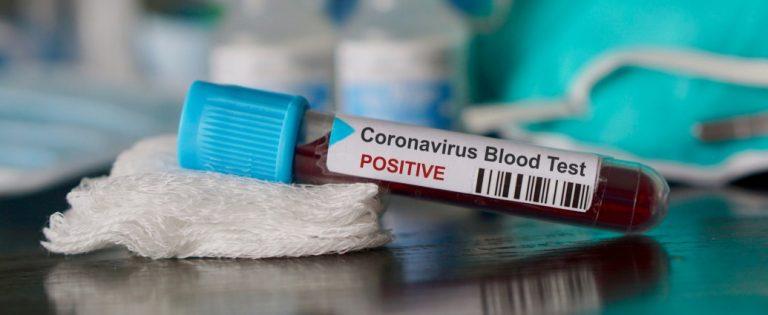 Grupul de Comunicare Strategică: 69 cazuri noi de persoane infectate cu SARS-CoV-2, față de ultima raportare